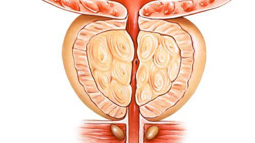 Prostata-Wissen: Zehn Fakten über die Männerdrüse