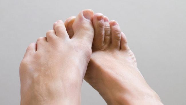 """COVID-Zehen"" ist das neue Symptom des Coronavirus"