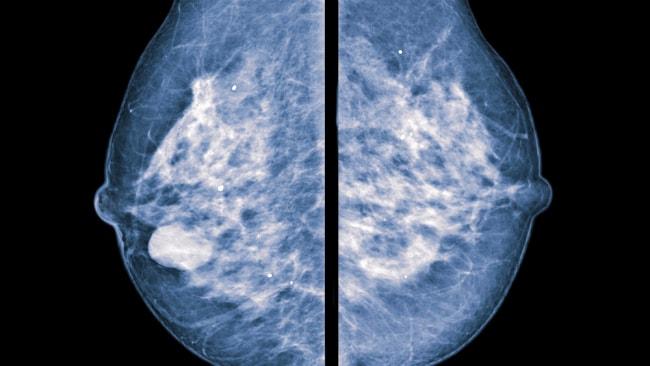 COVID-Impfstoffe können falsch positive Mammogramme verursachen